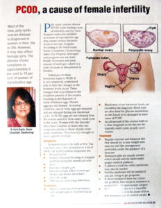 PCOD, a cause of female infertility